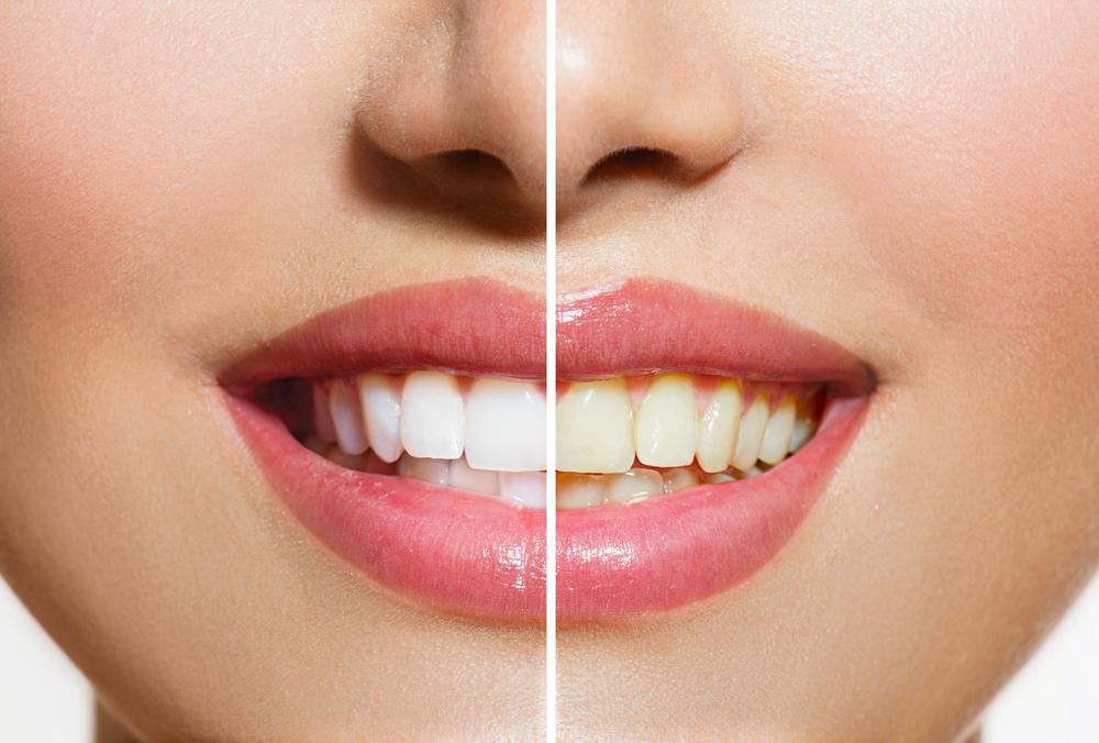 To learn about professional teeth whitening in Hayward, call Dr. Fong at 510-582-8727 today